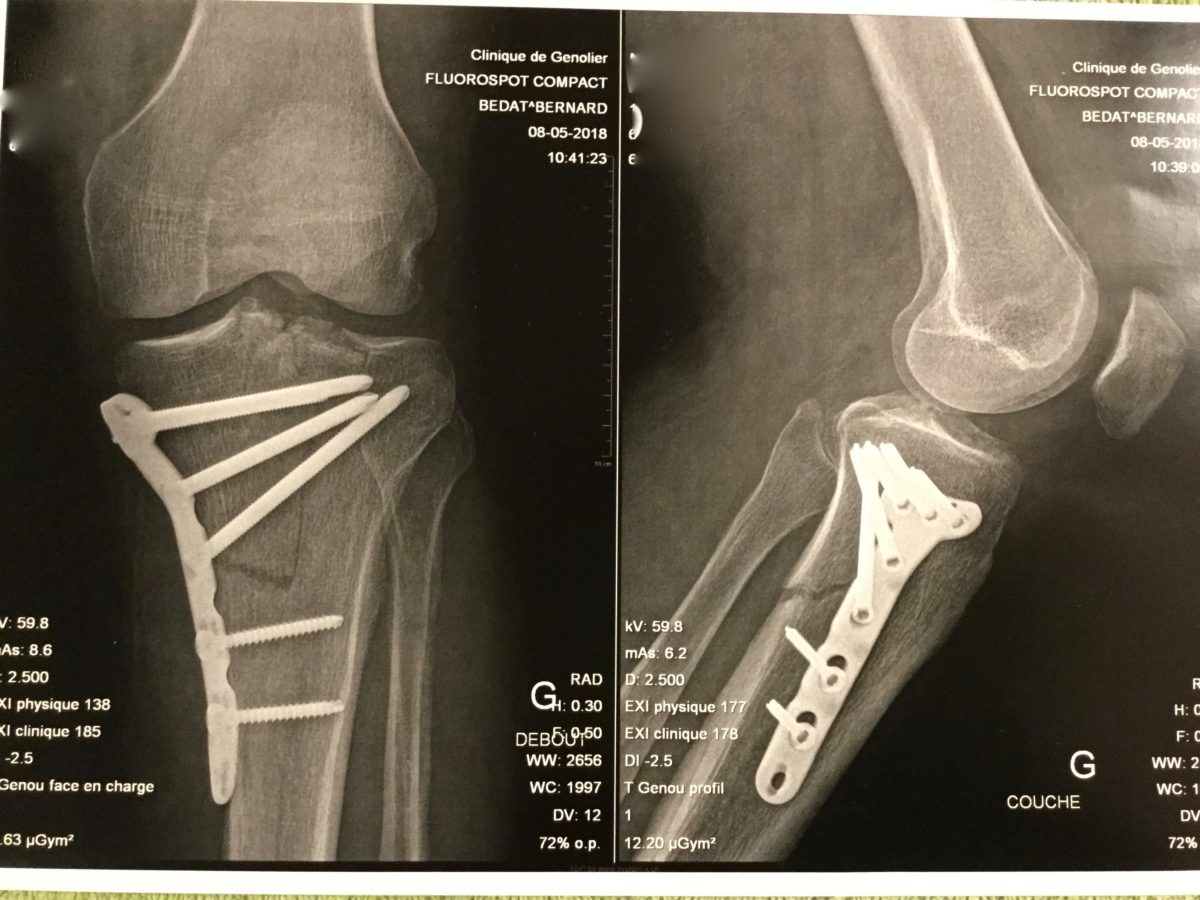 Tibia after surgery